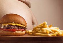 מהי השמנה?