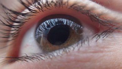 Photo of מהו אבחון אירידיולוגיה (אירידולוגיה)