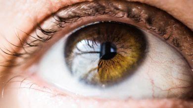 Photo of אבחון בלובן העין