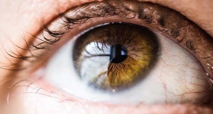 אבחון בלובן העין